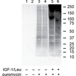 Puromycin Incorporation as a Measure of Global Protein Synthesis