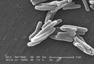 Scanning electron microscopic image of micrograph of Mycobacterium tuberculosis. Photo credit: Janice Haney Carr/CDC