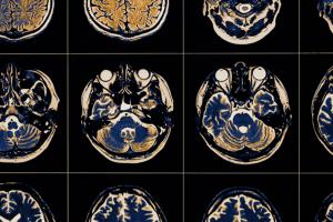 parkinson's disease scan